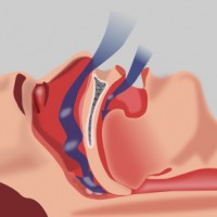 Consulting an Osteopath for Obstructive Sleep Apnea Syndrome