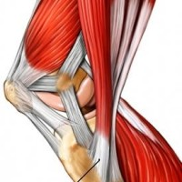 Tendinitis of the Knee (Pes Anserinus Tendinitis)