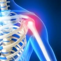 Traiter la douleur à l'épaule