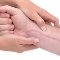 L'ostéopathie pour le traitement de vos cicatrices